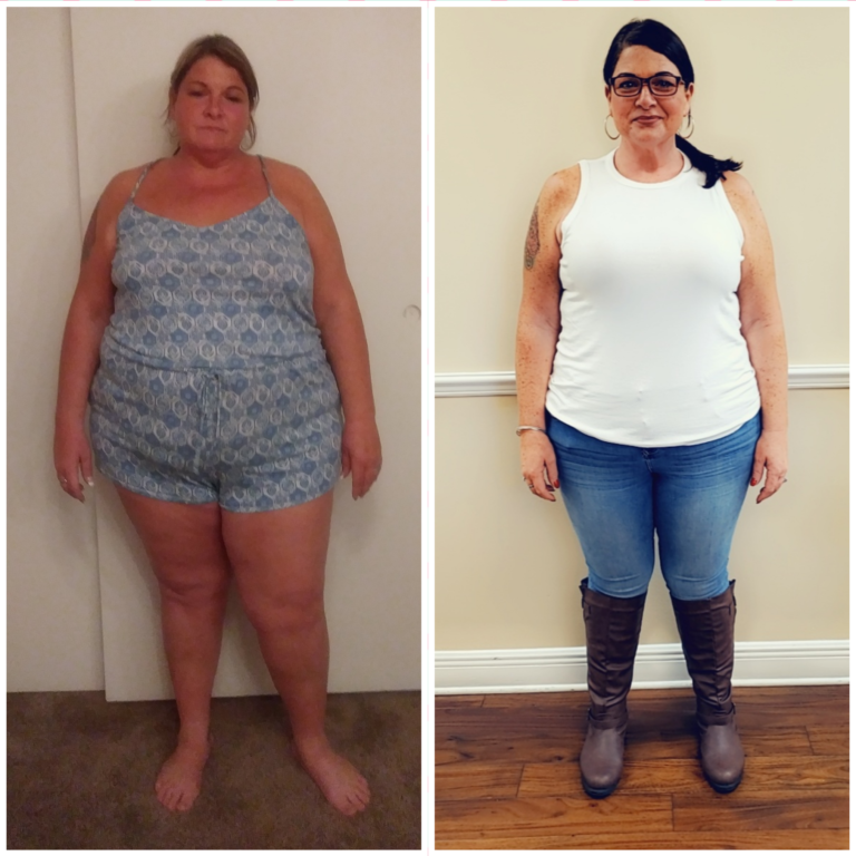 Bradenton Weight Loss Before and After